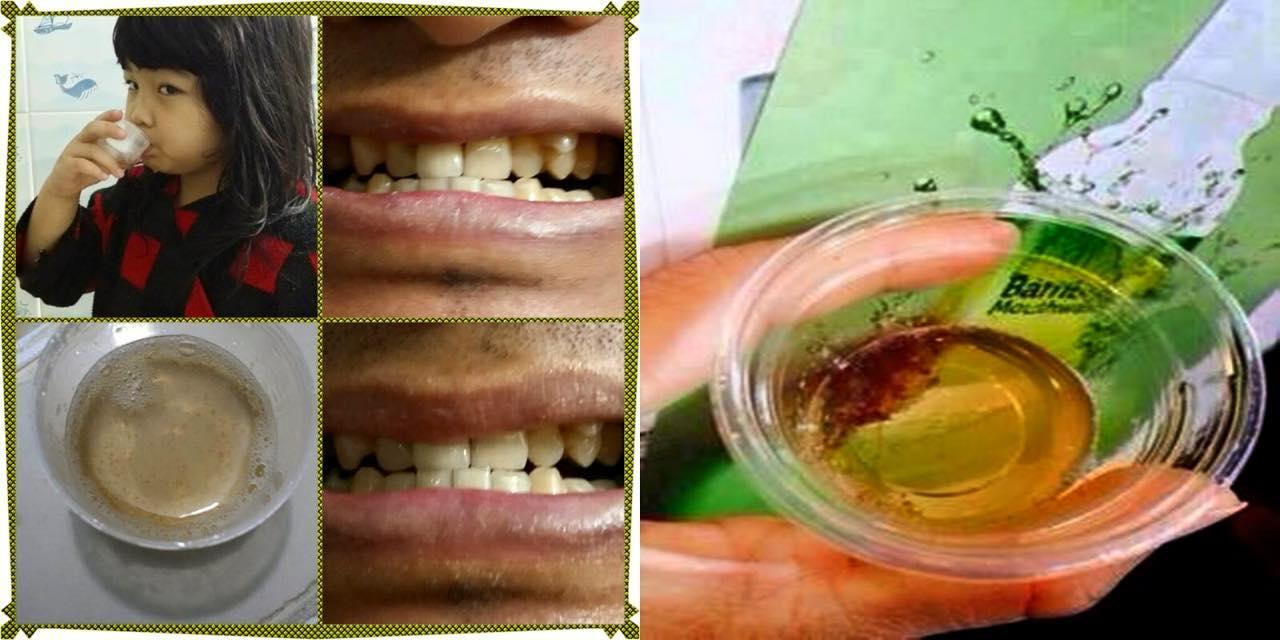 น้ำยาบ้วนปาก Bamboo mouthwash  สารสกัดพิเศษจากเยื่อไผ่