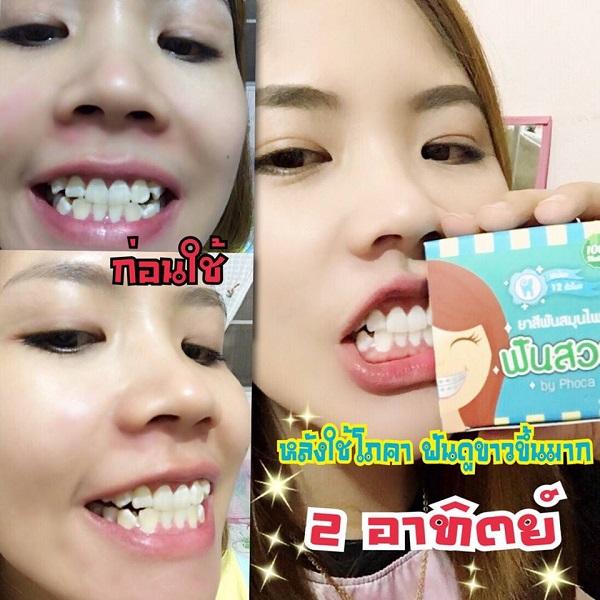 ยาสีฟัน phoca
